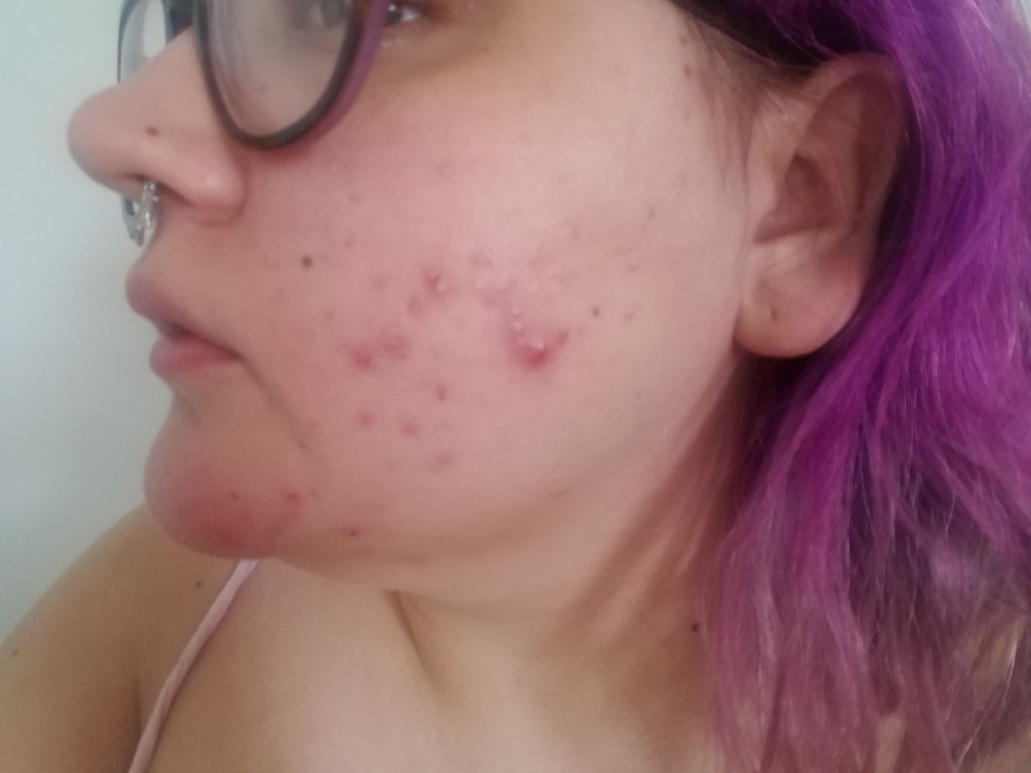 Hormonal Acne After The Depo Shot. How To Fix It  July 20Th Depo Provera Injection When Is Next One Due